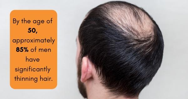 best scalp micropigmentation los angeles