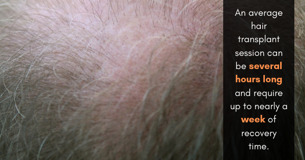 hair transplant surgery los angeles
